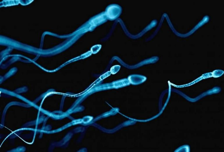 Infertility - Spermogramme